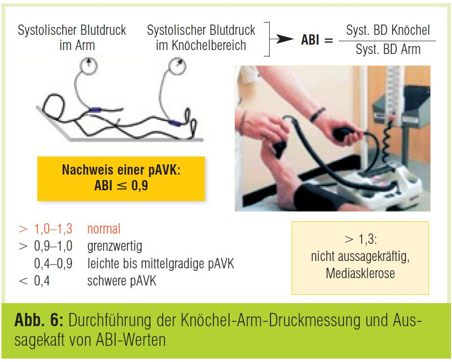 Knöchel-Arm-Index - DocCheck Flexikon