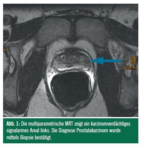 Die zukünftige Diagnostik des Prostatakarzinoms   Spectrum Urologie ...