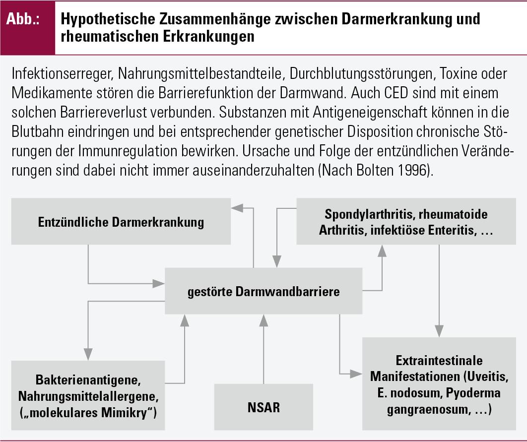chronische darmentzündung therapie