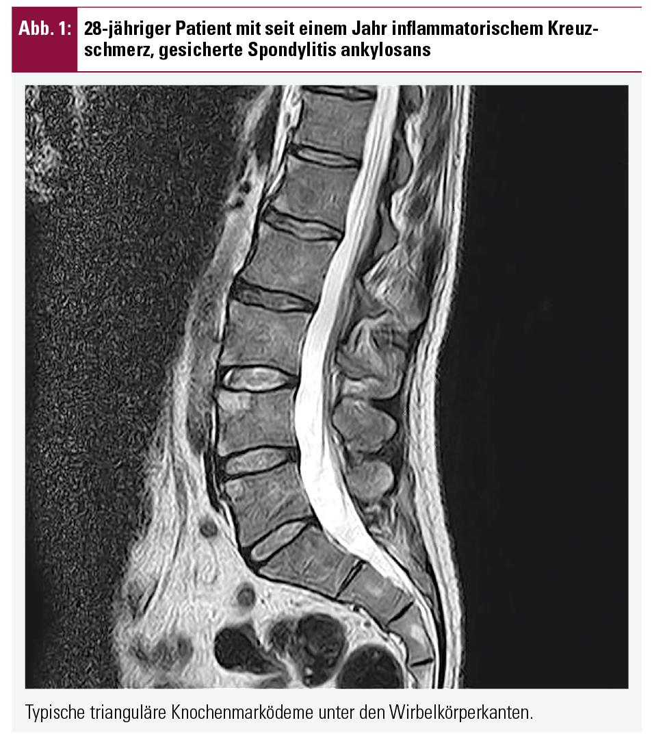 Knochenmarködem und doch keine axiale SpA | Fakten der Rheumatologie ...