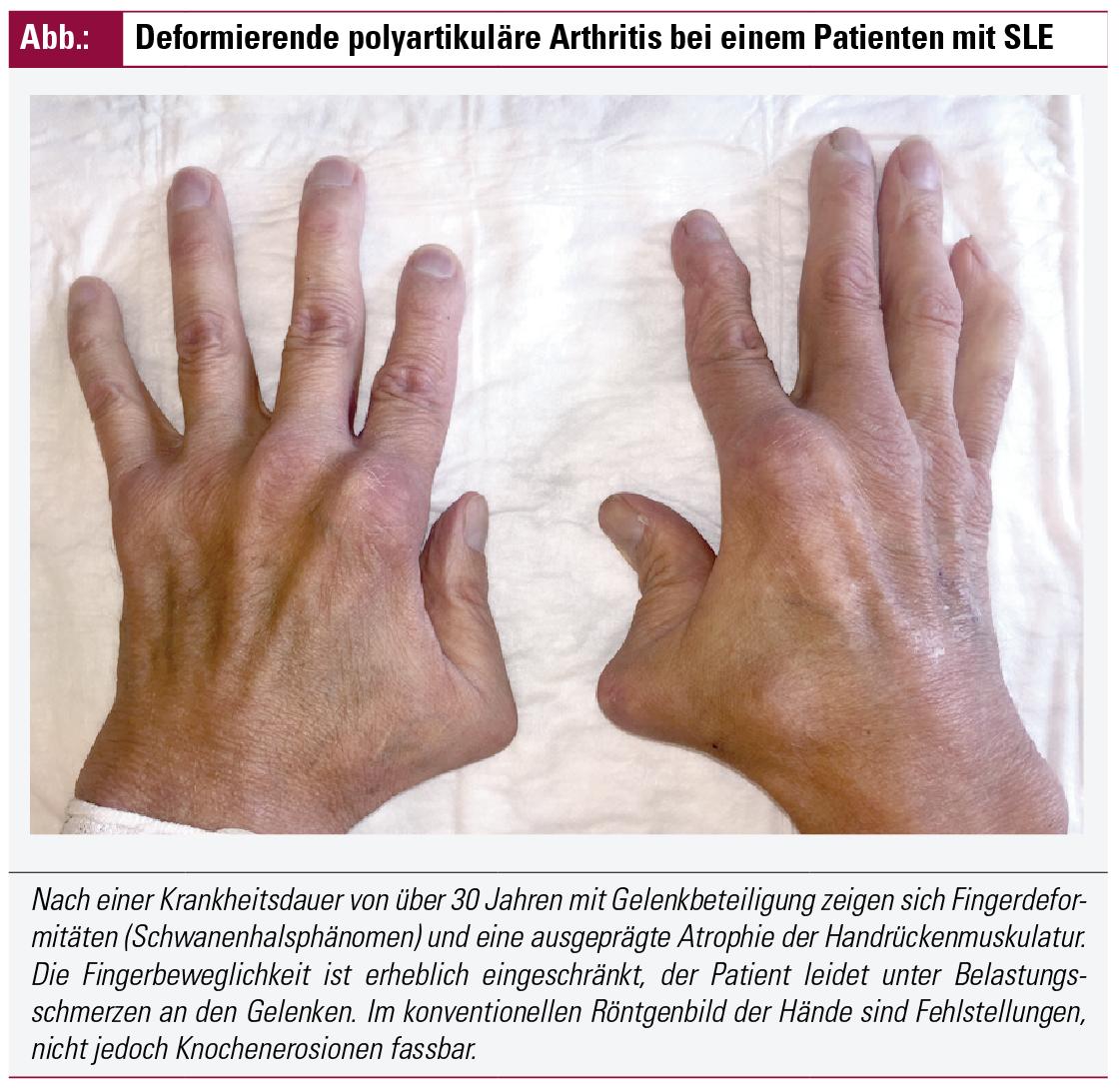 Behandlung der Arthritis bei Kollagenosen   Fakten der Rheumatologie ...