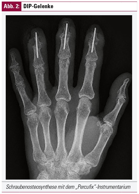 aktivierte heberden arthrose