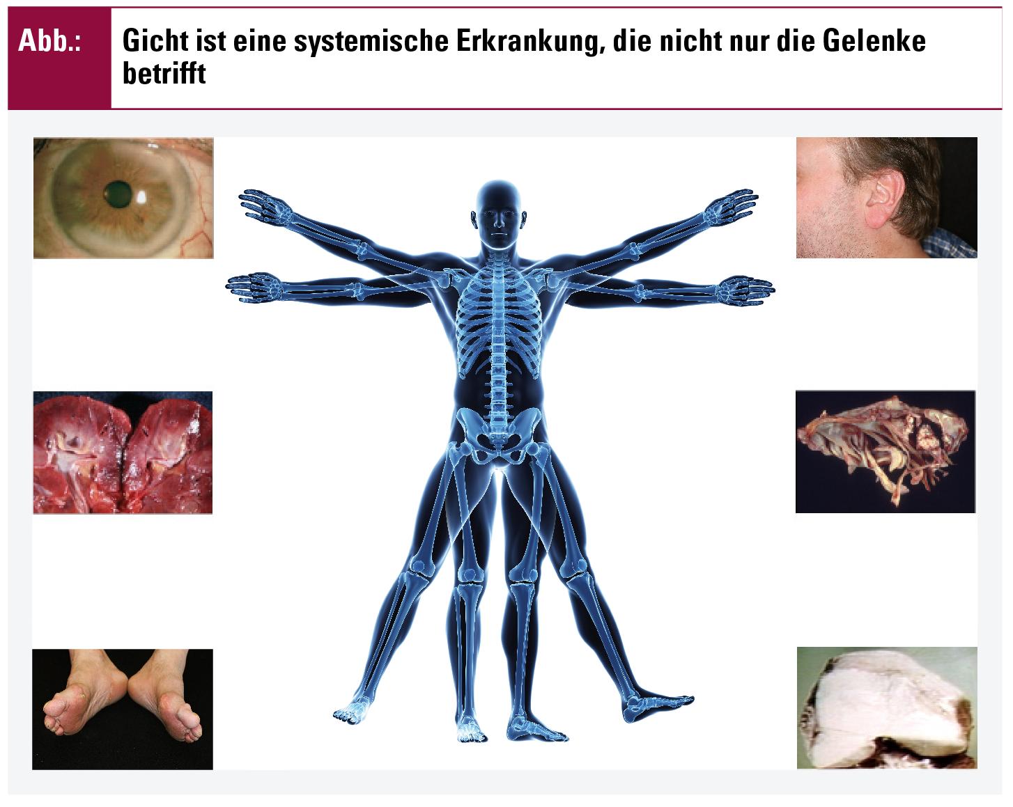 Großartig Definieren Systemische Anatomie Fotos - Anatomie Ideen ...