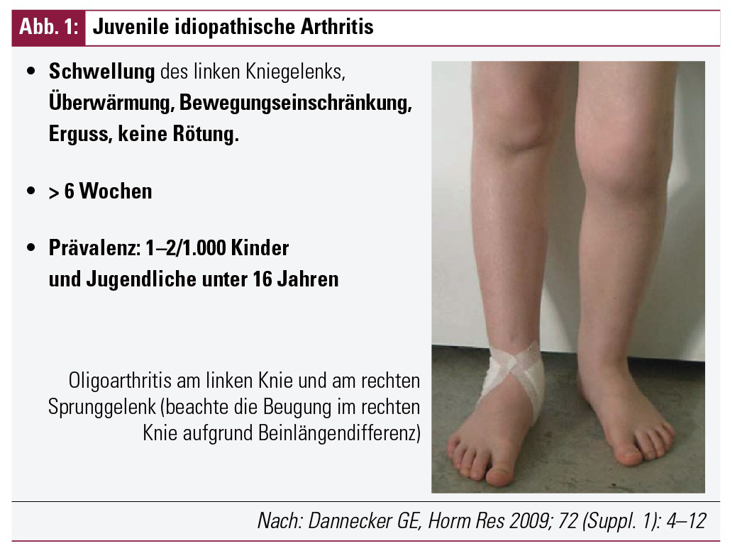 Kindliches Rheuma: Ursachen & Symptome