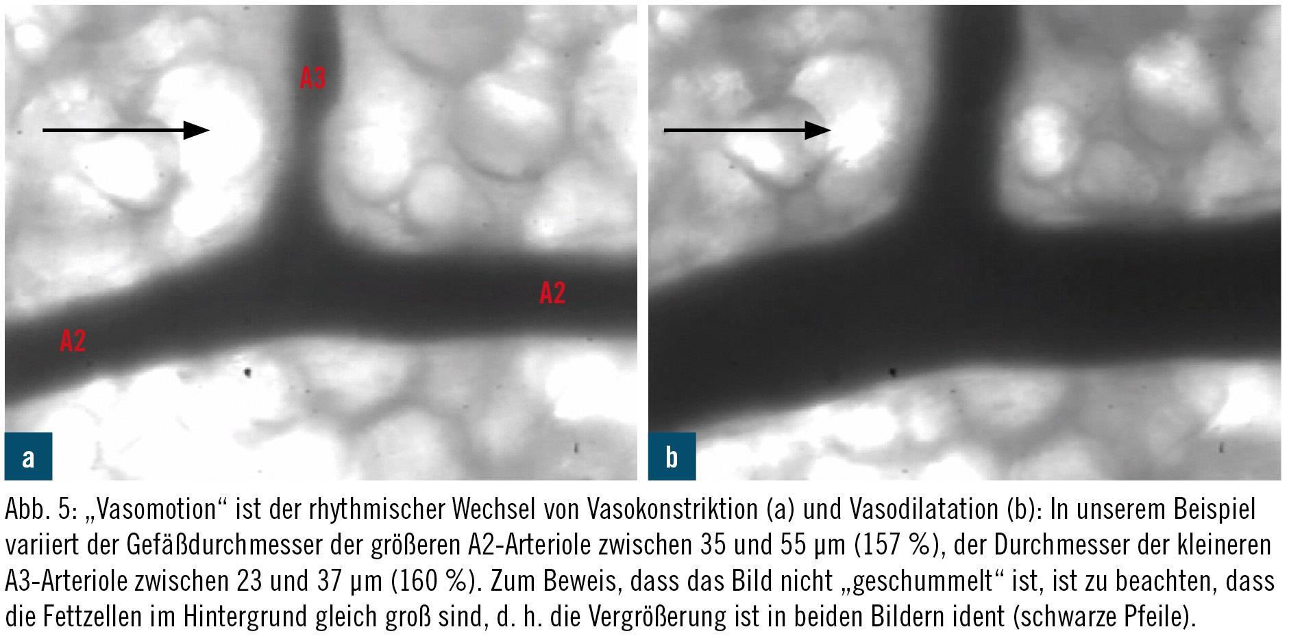 Mikrozirkulation bei IntensivpatientInnen | klinik | MedMedia