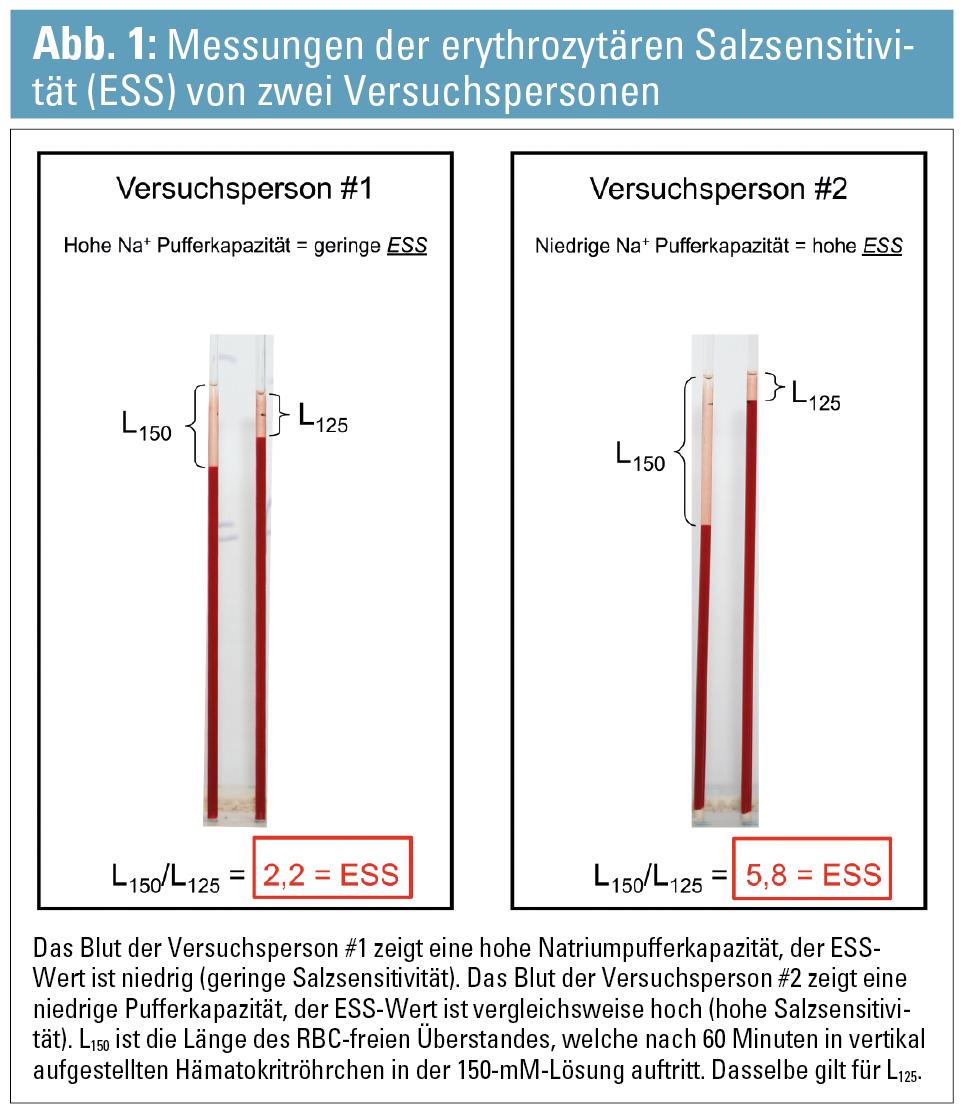 Gemütlich Anatomie Und Physiologie Bluttest Ideen - Menschliche ...