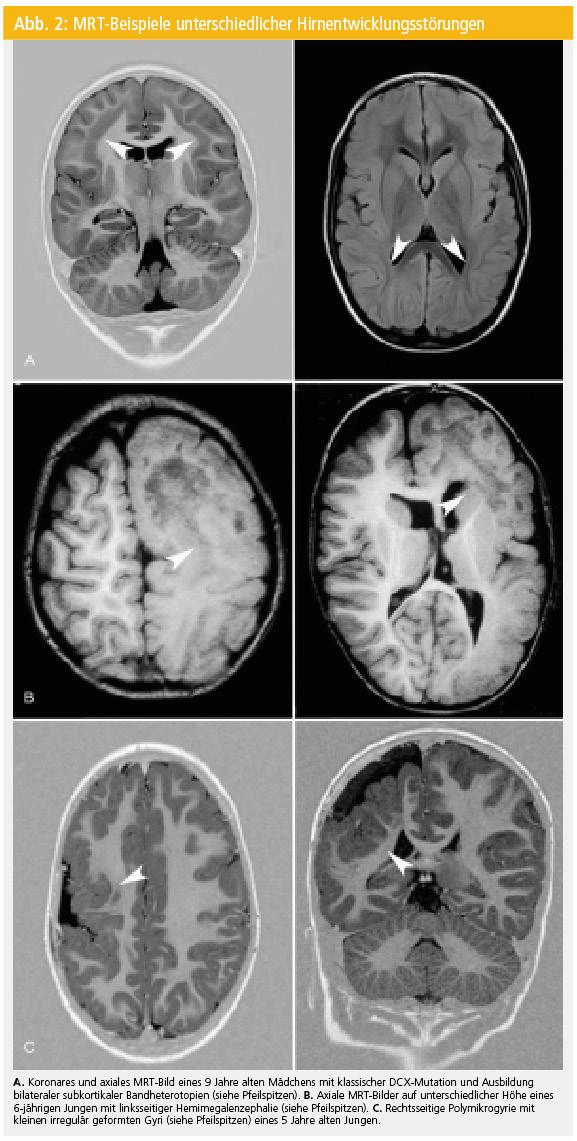 Ausgedehnte und fokale Hirnentwicklungsstörungen als Ursache ...