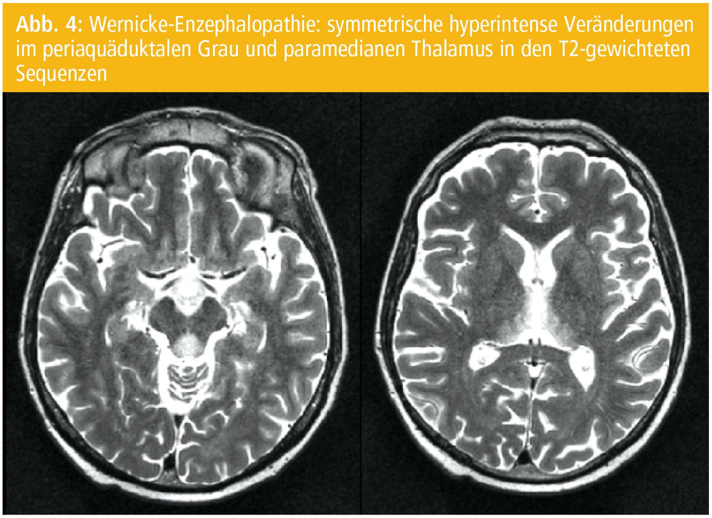 fokale epilepsie therapie