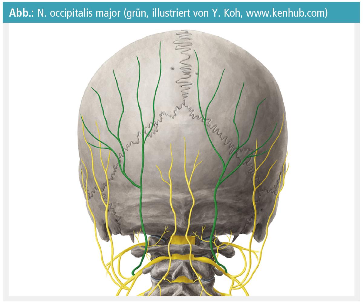 Der N. occipitalis major und seine Rolle bei Kopfschmerzen ...