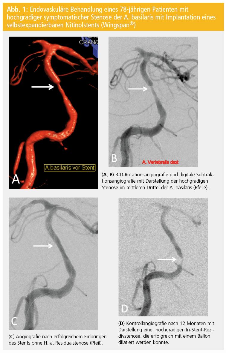 Behandlung arteriosklerotischer Stenosen – Technik der ...