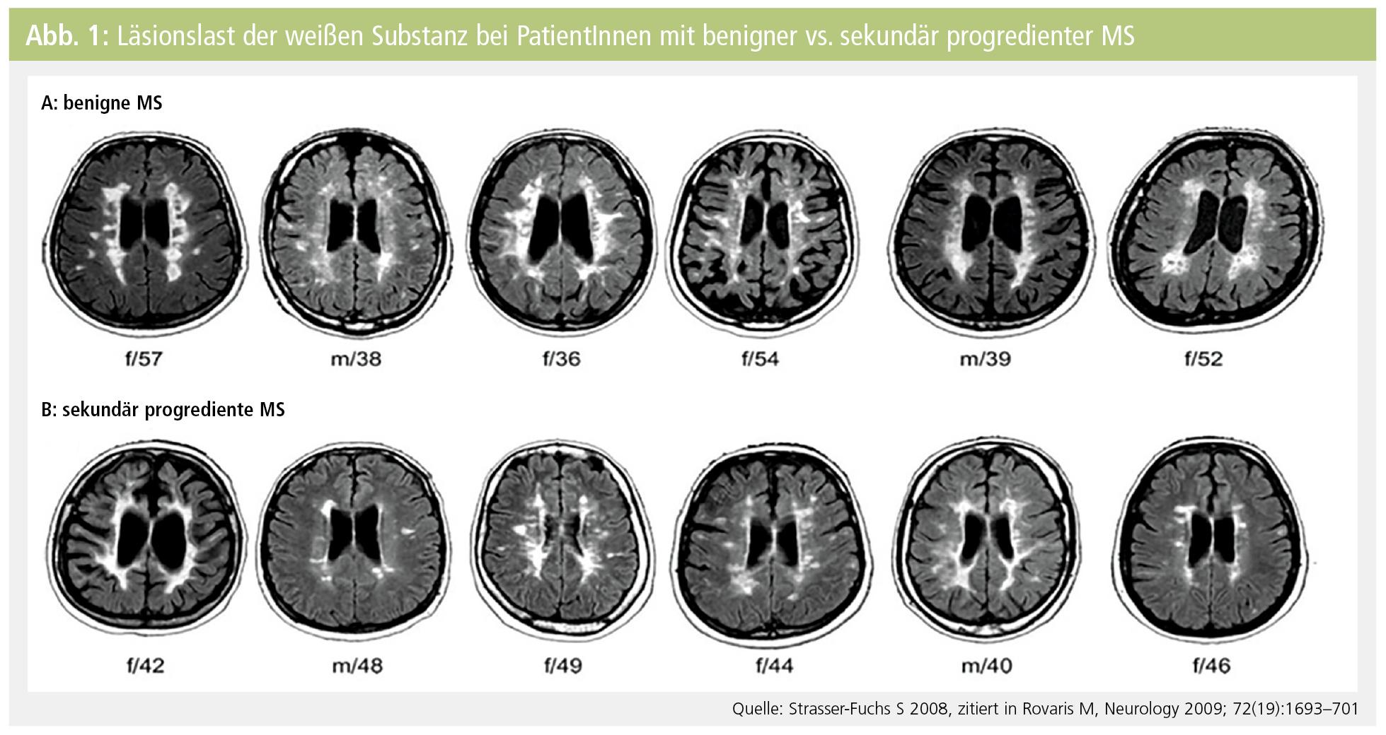 Plastizität des Gehirns am Beispiel der Multiplen Sklerose (MS ...
