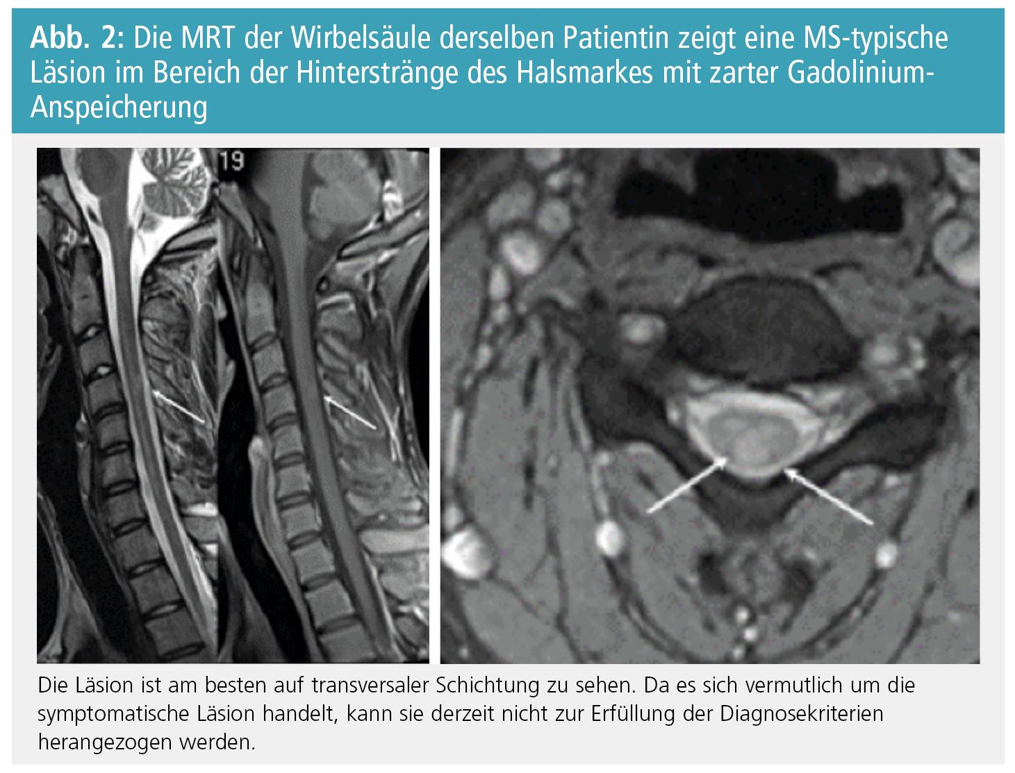 Aktuelle Diagnosekriterien der MS II – Möglichkeiten, Gefahren und ...