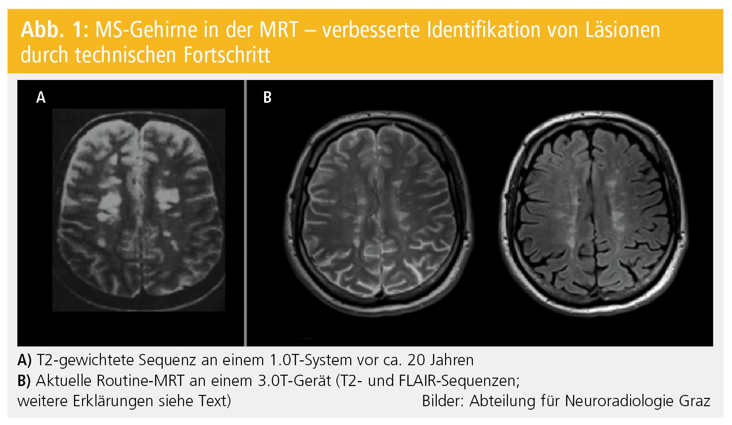 Brauchen wir neue MR-Techniken in der MS?   Neurologisch   MedMedia