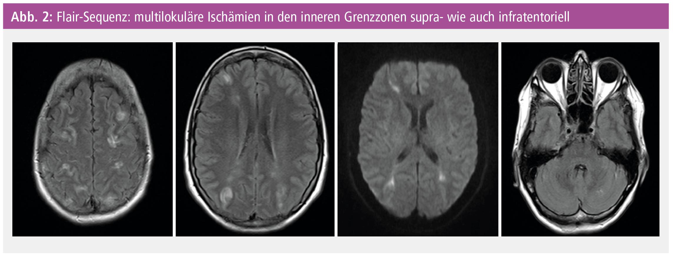 Schön Anatomie Und Physiologie Des Schlaganfalls Ideen - Menschliche ...