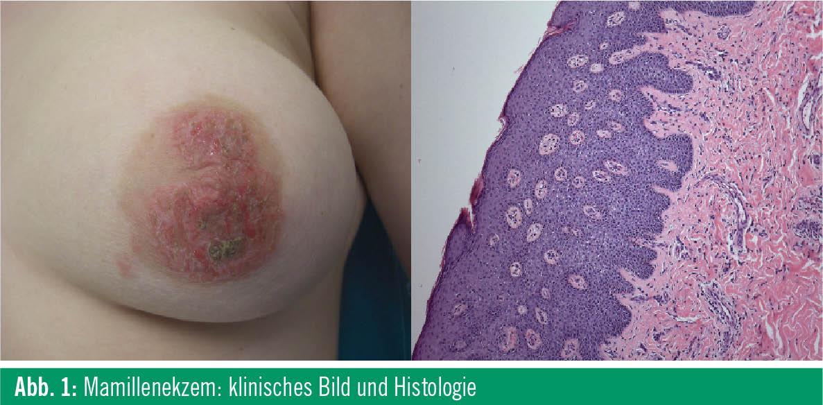 Symptome von Zysten in der Brust