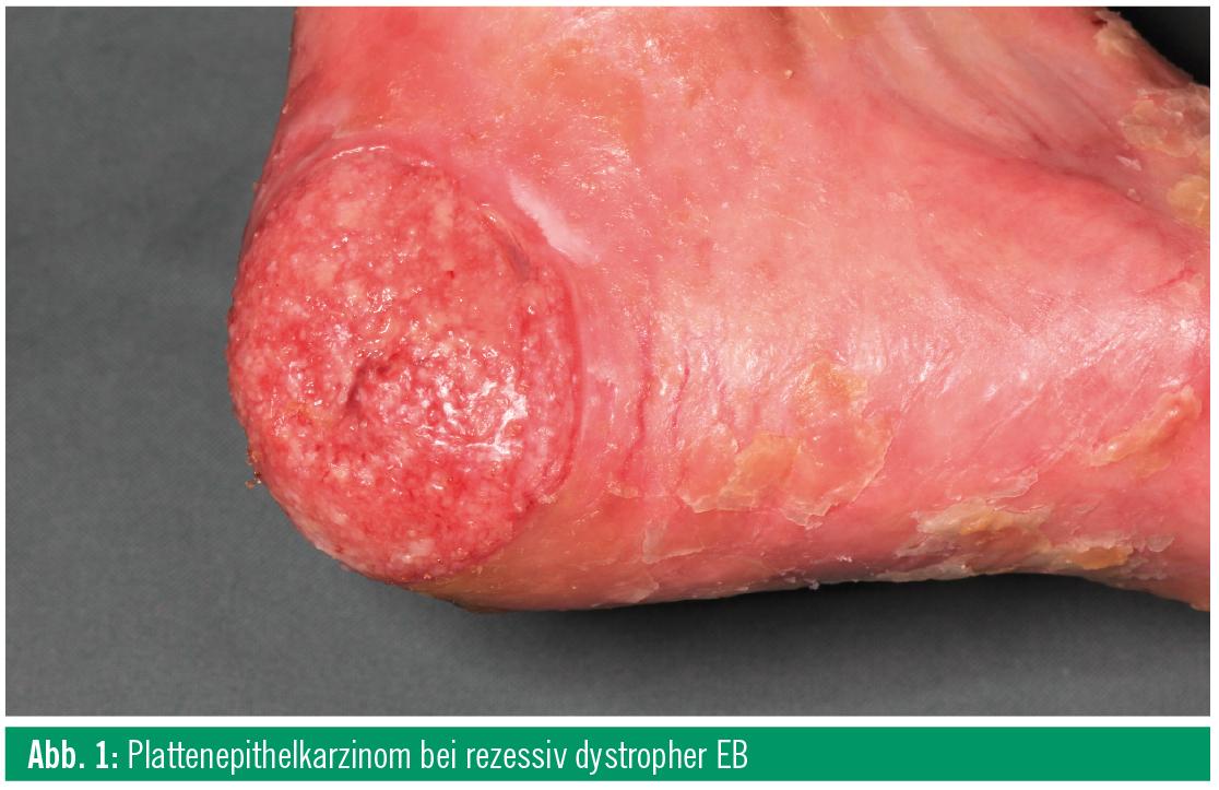 Epidermolysis bullosa simplex weber cockayne type