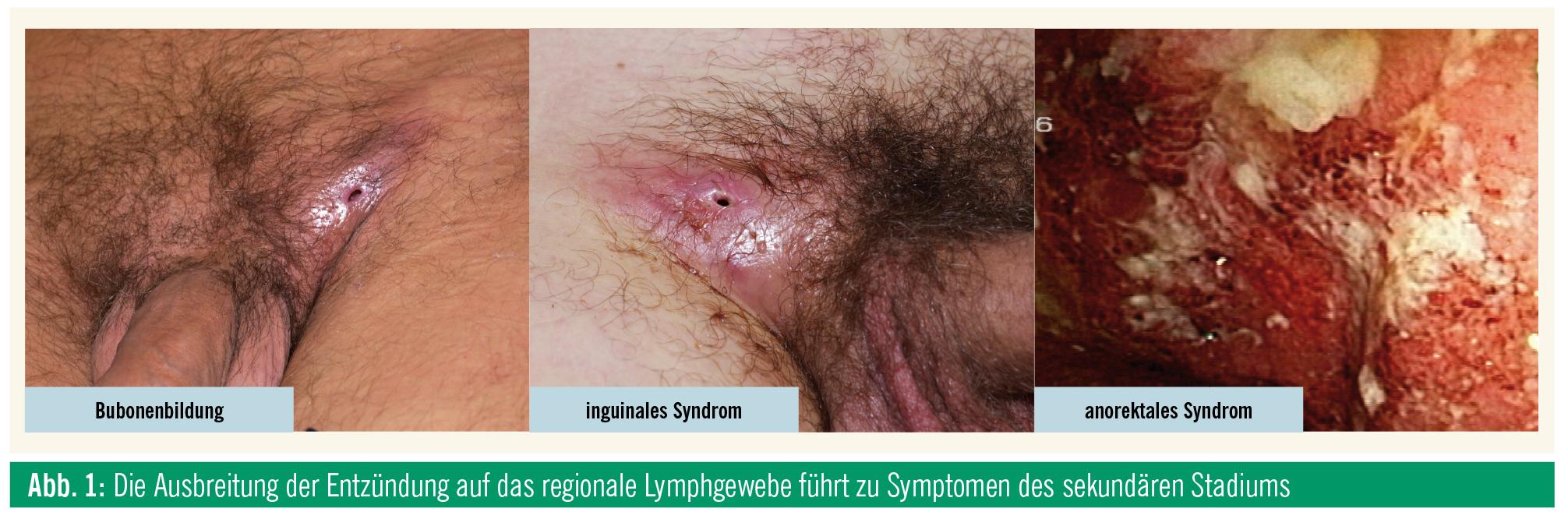 Bilder eines Penis mit syphalis