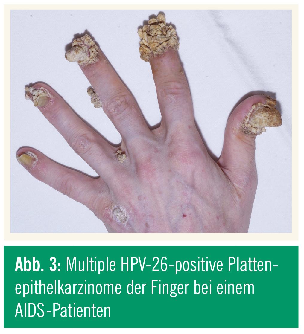 Intervento papilloma nasale, Papilloma intraduttale e secrezioni