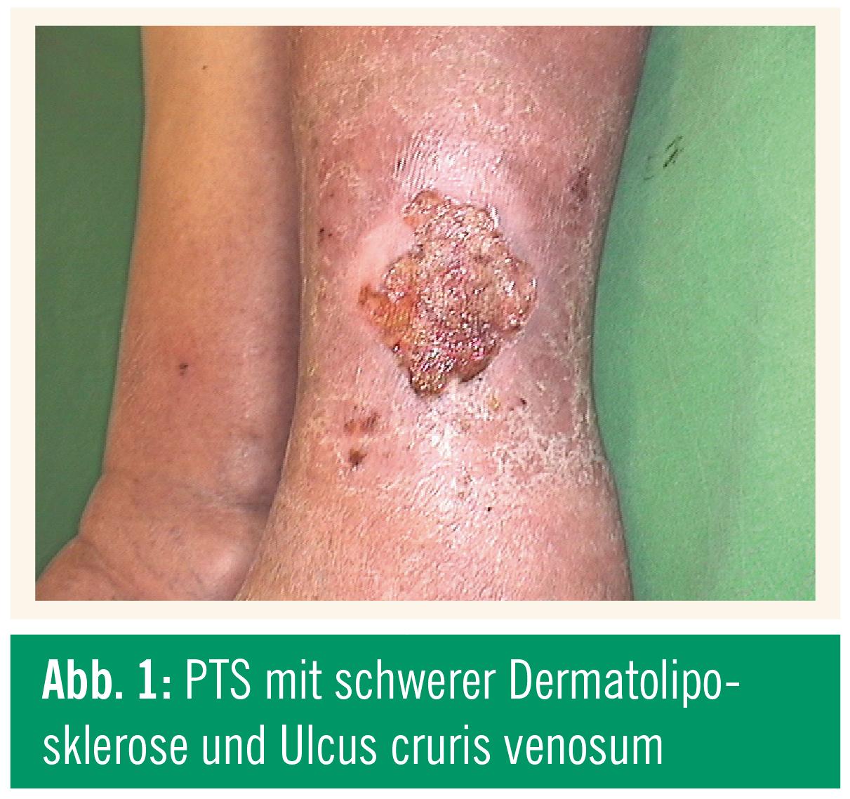 Der Nagelzwang im Finger des Beines die Behandlung