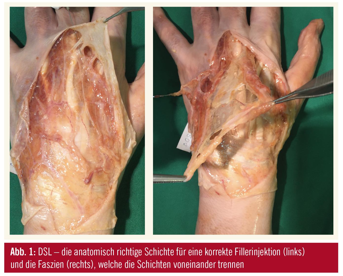 Entwicklung anatomischer Guidelines − ästhetische ...