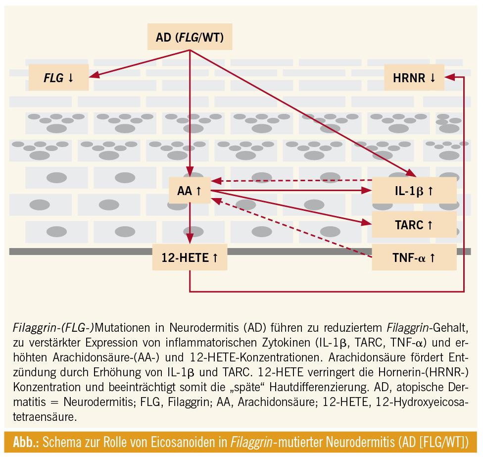 Atopische Dermatitis – Veränderungen in der Zusammensetzung von ...