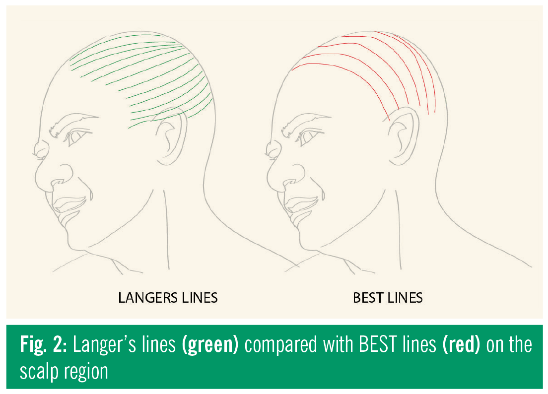 Revisiting Langer\'s Lines, Introducing BEST Lines, and Studying the ...