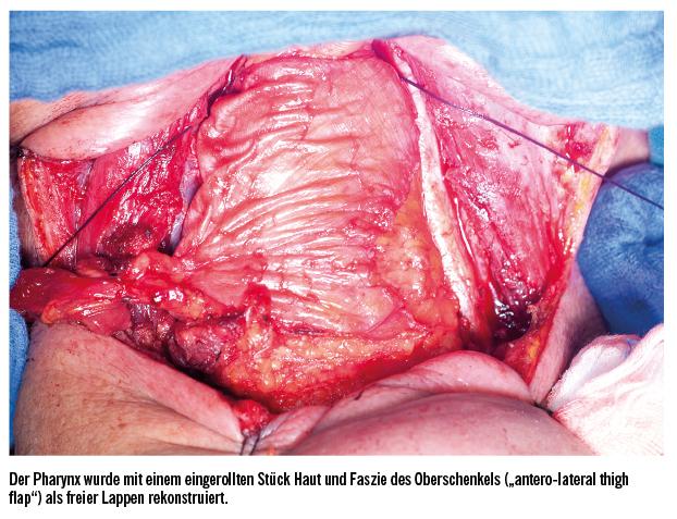 Rolle der Salvage-Chirurgie bei HNO-Tumoren   Spectrum Onkologie ...