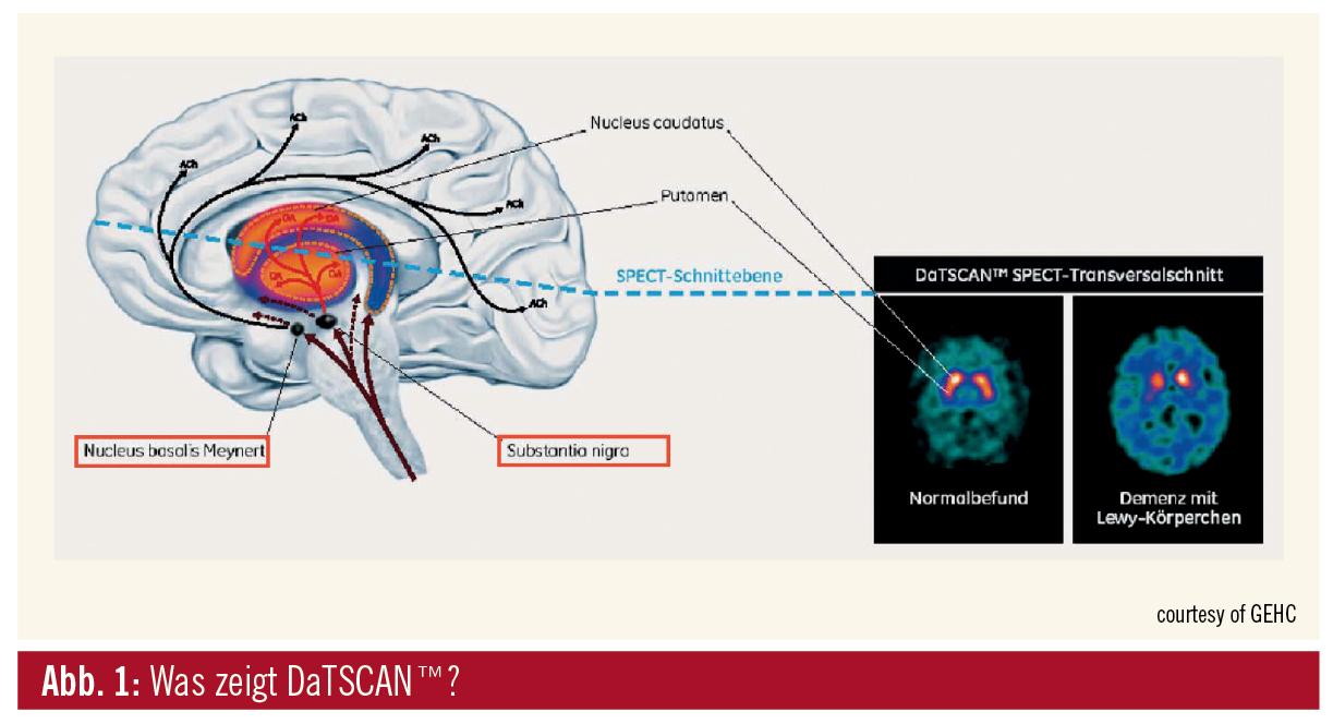 Großzügig Gehirnteile Diagramm Ideen - Menschliche Anatomie Bilder ...