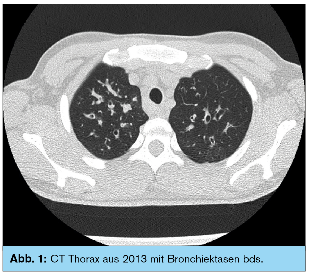 bronchiektasen therapie und diagnose