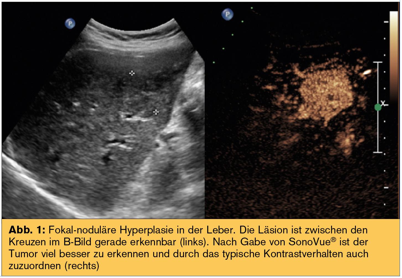 SERIE (interventionelle) Diagnostik: Bei Beschwerden im Bauch zuerst ...