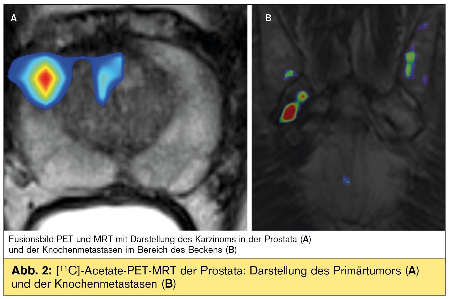 prostatakrebs mit knochenmetastasen heilung