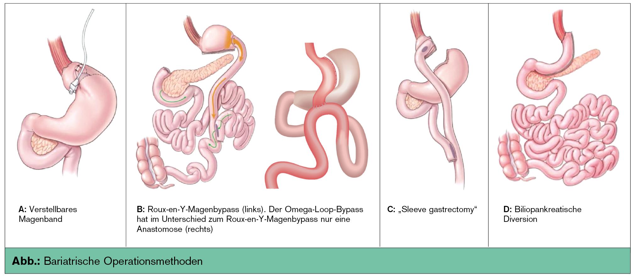 Update Adipositaschirurgie   Universum Innere Medizin   MedMedia