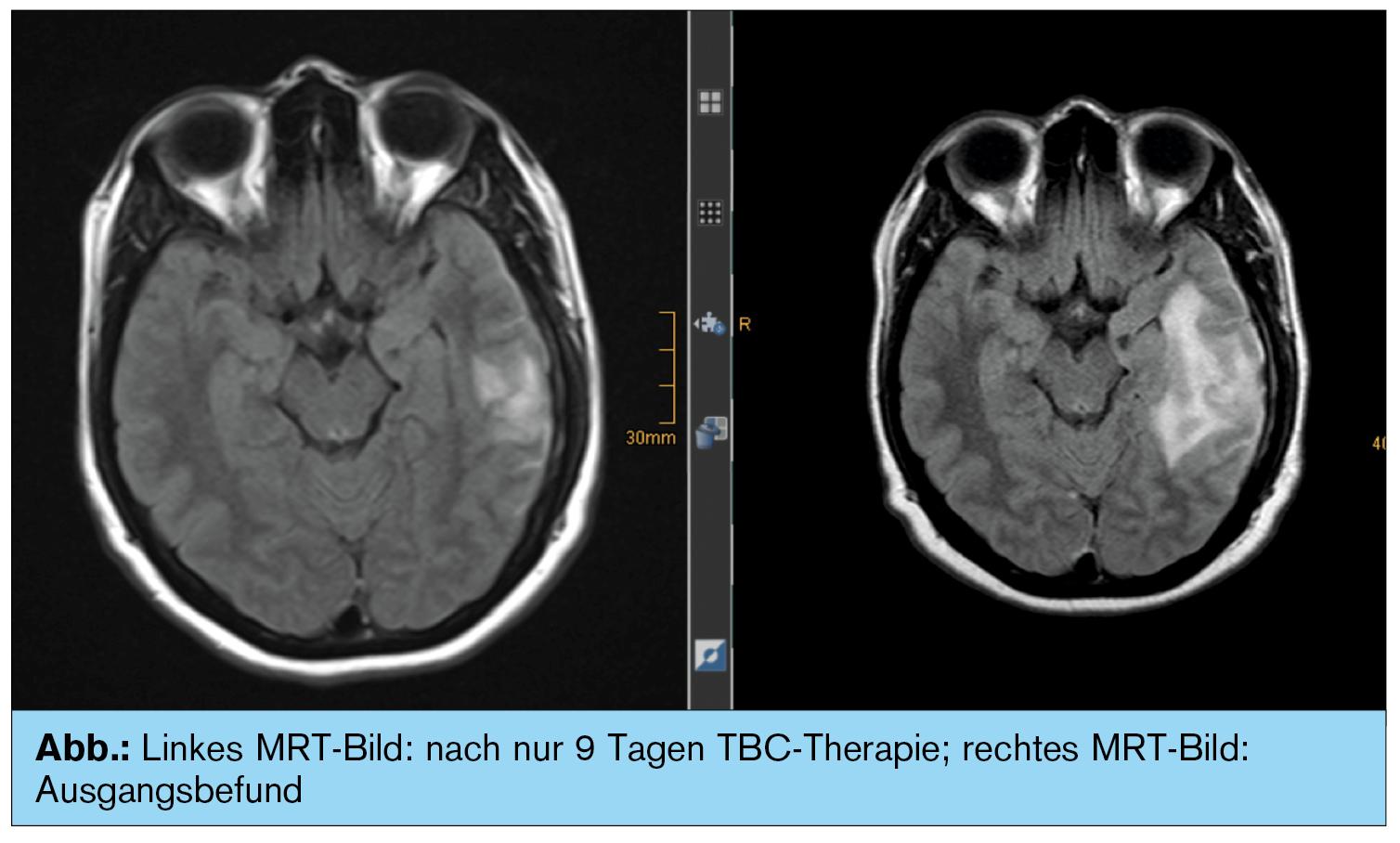 Vom Kinderwunsch zur ZNS-Tuberkulose | Universum Innere Medizin ...