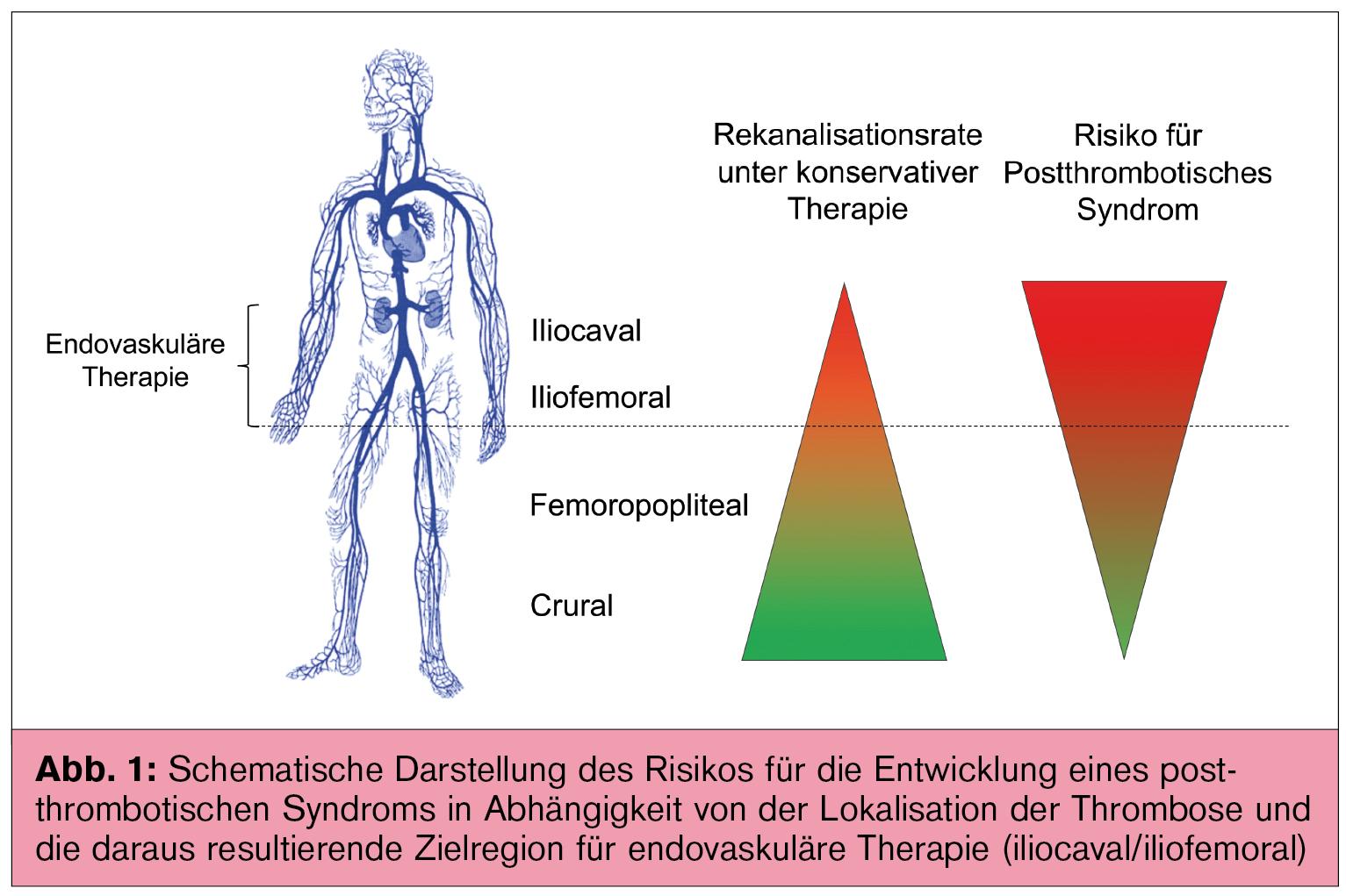 Venenstenting – welche Patienten profitieren? | Universum Innere ...