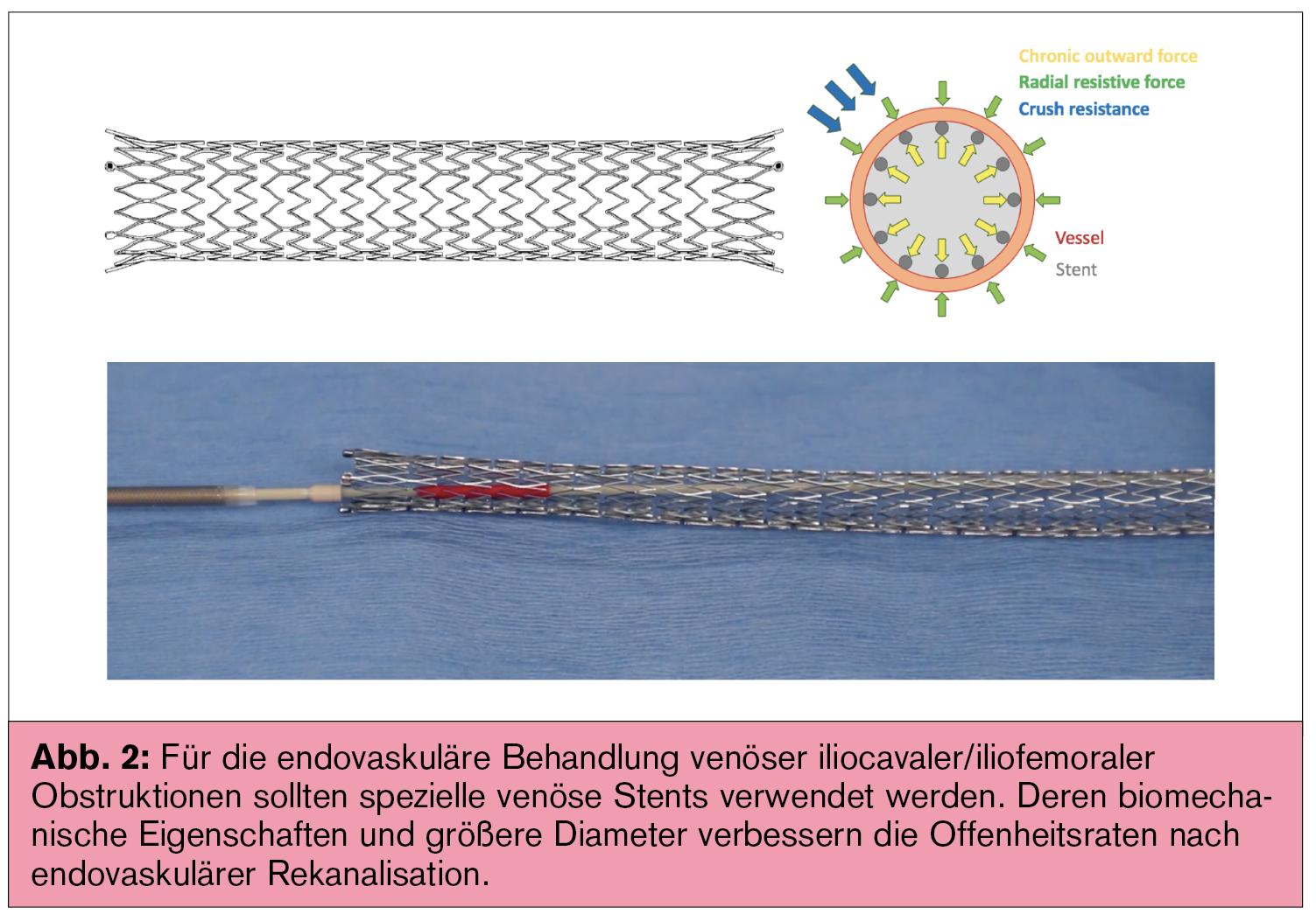 Schön Insektengehirnanatomie Galerie - Menschliche Anatomie Bilder ...